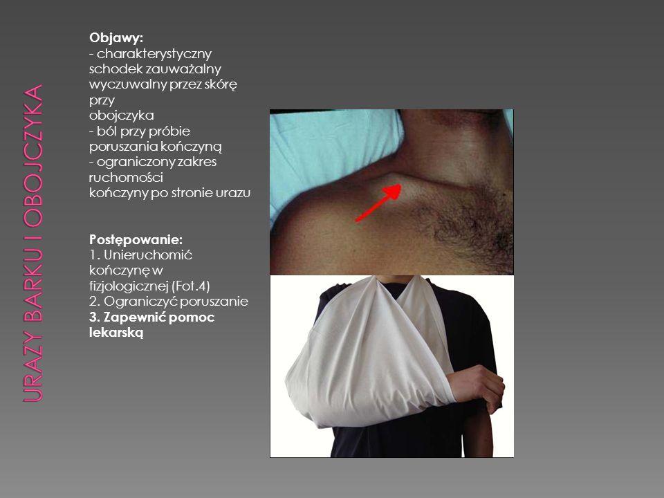 Objawy: - charakterystyczny schodek zauważalny wyczuwalny przez skórę przy obojczyka - ból przy próbie poruszania kończyną - ograniczony zakres ruchom