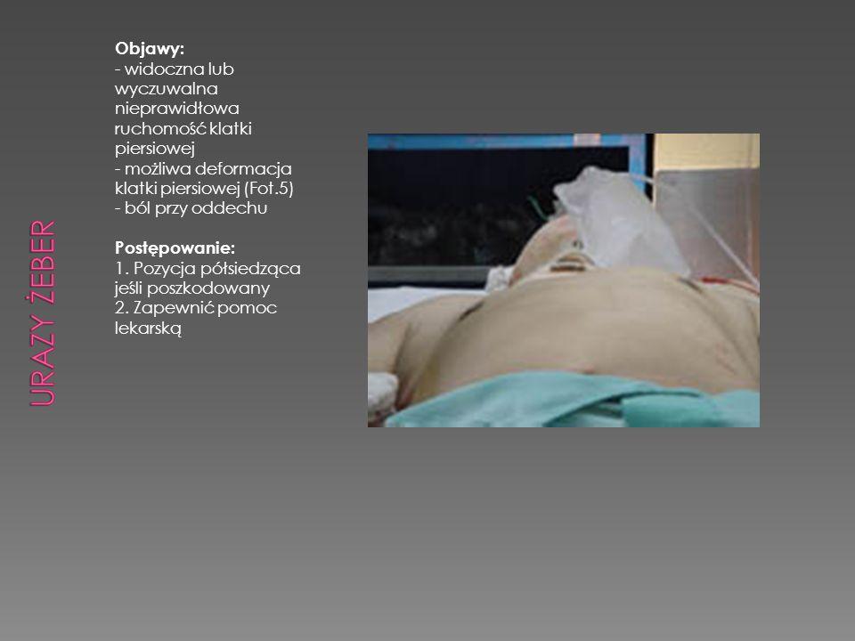 Objawy: - widoczna lub wyczuwalna nieprawidłowa ruchomość klatki piersiowej - możliwa deformacja klatki piersiowej (Fot.5) - ból przy oddechu Postępow