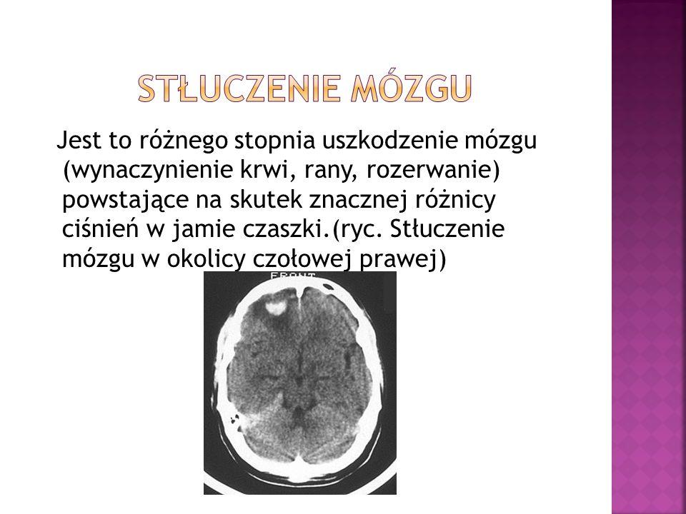 Jest to różnego stopnia uszkodzenie mózgu (wynaczynienie krwi, rany, rozerwanie) powstające na skutek znacznej różnicy ciśnień w jamie czaszki.(ryc. S