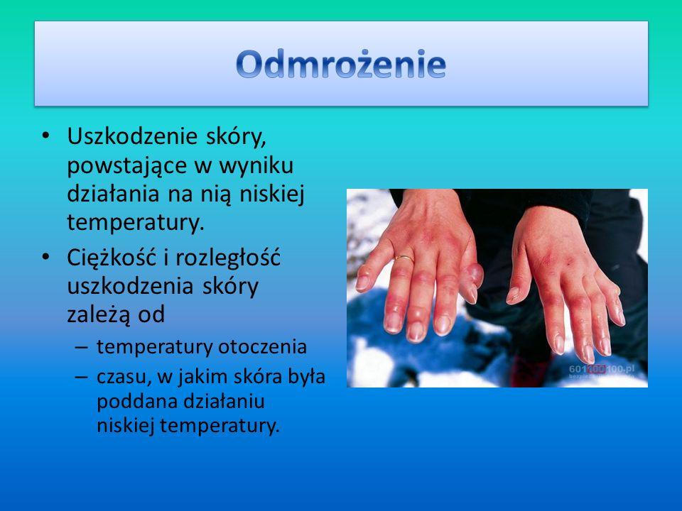 Uszkodzenie skóry, powstające w wyniku działania na nią niskiej temperatury. Ciężkość i rozległość uszkodzenia skóry zależą od – temperatury otoczenia
