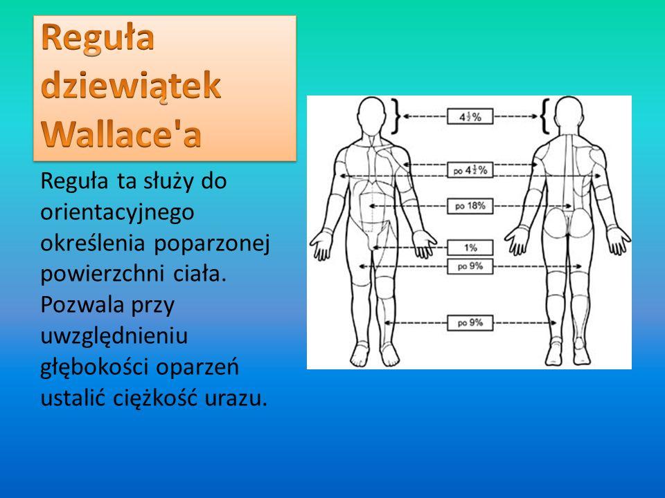 Reguła ta służy do orientacyjnego określenia poparzonej powierzchni ciała. Pozwala przy uwzględnieniu głębokości oparzeń ustalić ciężkość urazu.