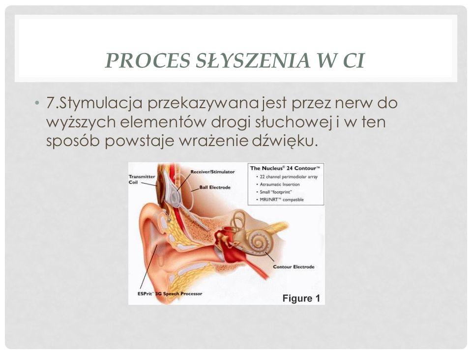 PROCES SŁYSZENIA W CI 7.Stymulacja przekazywana jest przez nerw do wyższych elementów drogi słuchowej i w ten sposób powstaje wrażenie dźwięku.