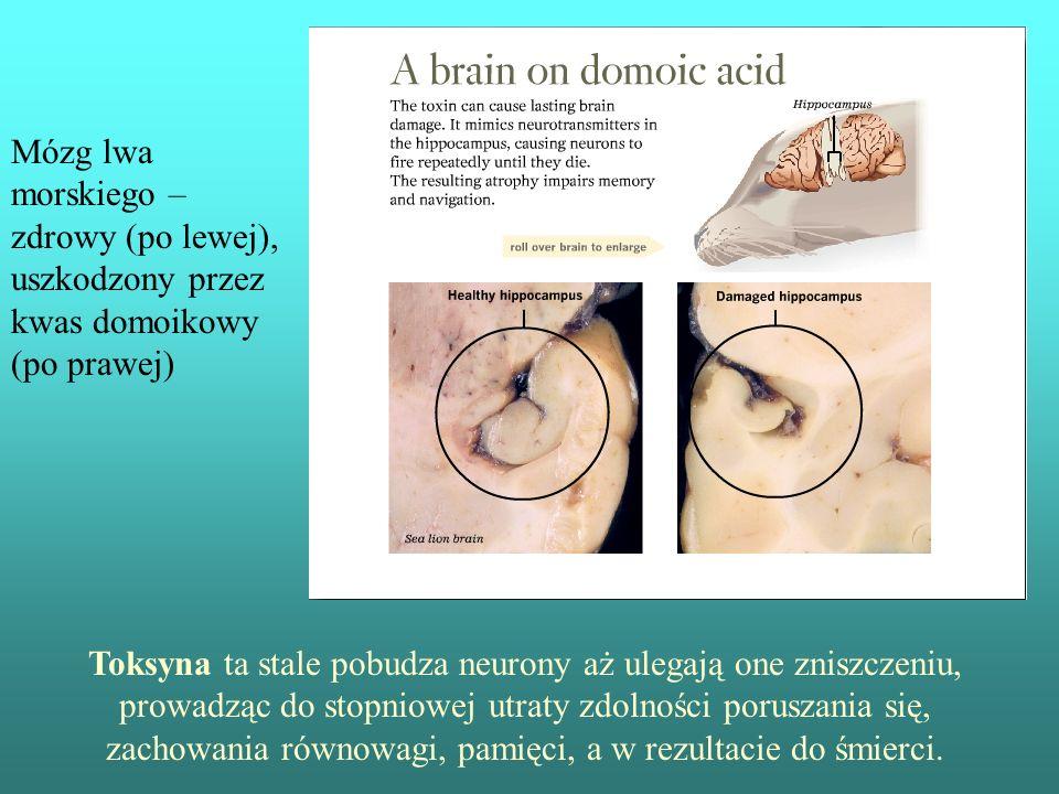 Mózg lwa morskiego – zdrowy (po lewej), uszkodzony przez kwas domoikowy (po prawej) Toksyna ta stale pobudza neurony aż ulegają one zniszczeniu, prowa