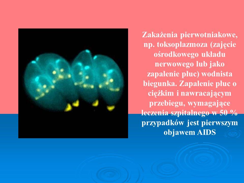 Zakażenia pierwotniakowe, np. toksoplazmoza (zajęcie ośrodkowego układu nerwowego lub jako zapalenie płuc) wodnista biegunka. Zapalenie płuc o ciężkim