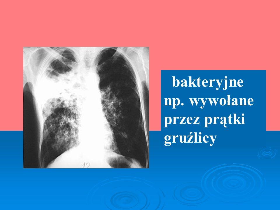 bakteryjne np. wywołane przez prątki gruźlicy