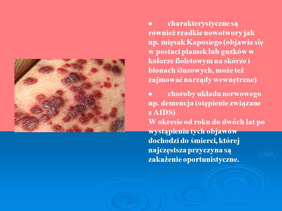 charakterystyczne są również rzadkie nowotwory jak np. mięsak Kaposiego (objawia się w postaci plamek lub guzków w kolorze fioletowym na skórze i błon
