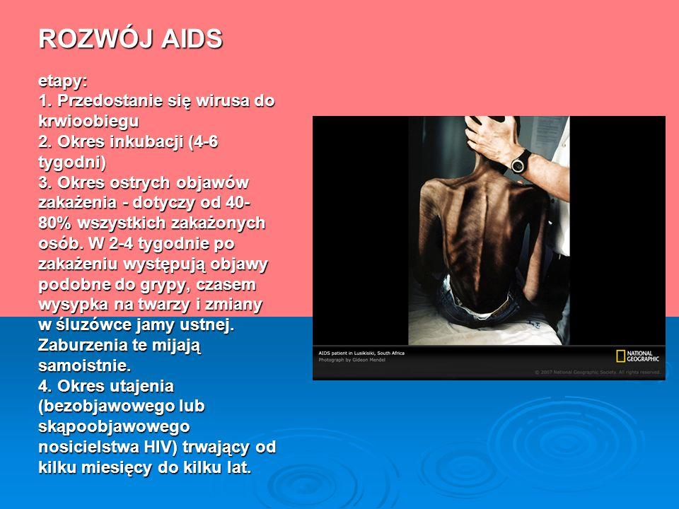 ROZWÓJ AIDS etapy: 1. Przedostanie się wirusa do krwioobiegu 2. Okres inkubacji (4-6 tygodni) 3. Okres ostrych objawów zakażenia - dotyczy od 40- 80%