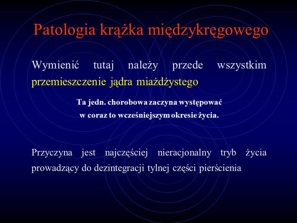 Patologia krążka międzykręgowego Wymienić tutaj należy przede wszystkim przemieszczenie jądra miażdżystego Ta jedn. chorobowa zaczyna występować w cor