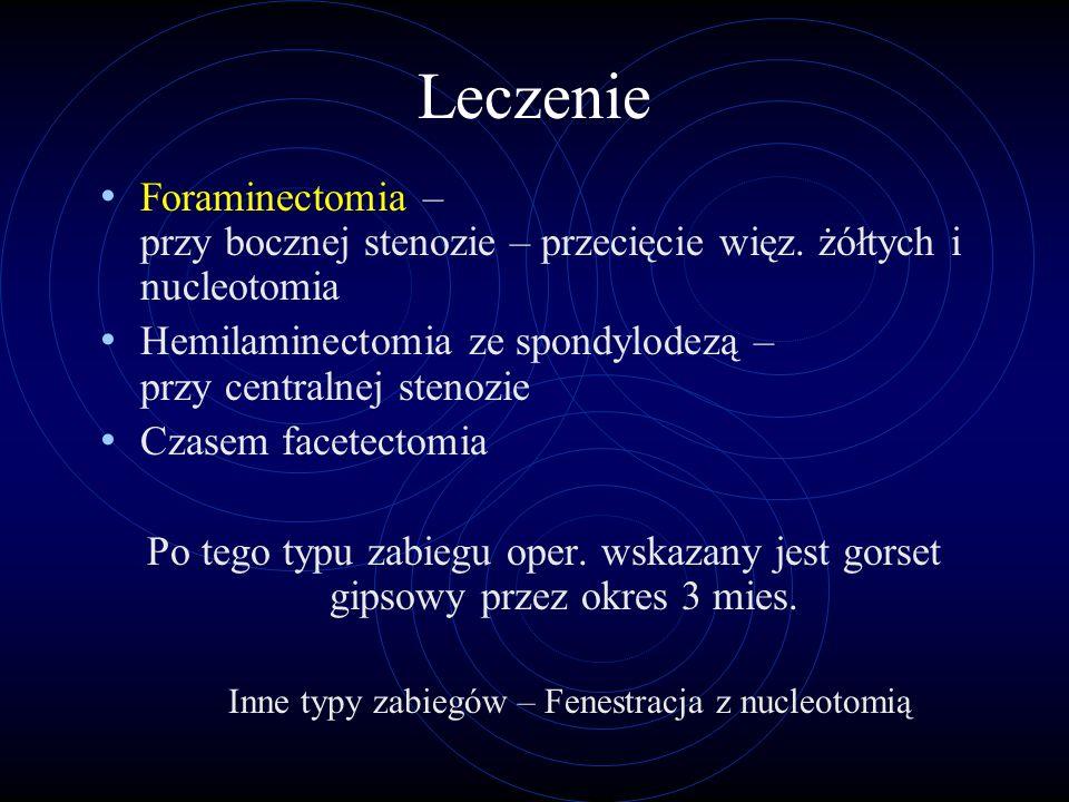 Leczenie Foraminectomia – przy bocznej stenozie – przecięcie więz. żółtych i nucleotomia Hemilaminectomia ze spondylodezą – przy centralnej stenozie C