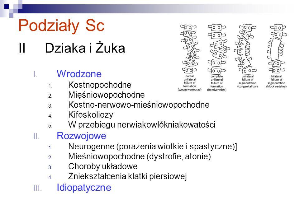 Podziały Sc IIDziaka i Żuka I. Wrodzone 1. Kostnopochodne 2. Mięśniowopochodne 3. Kostno-nerwowo-mieśniowopochodne 4. Kifoskoliozy 5. W przebiegu nerw