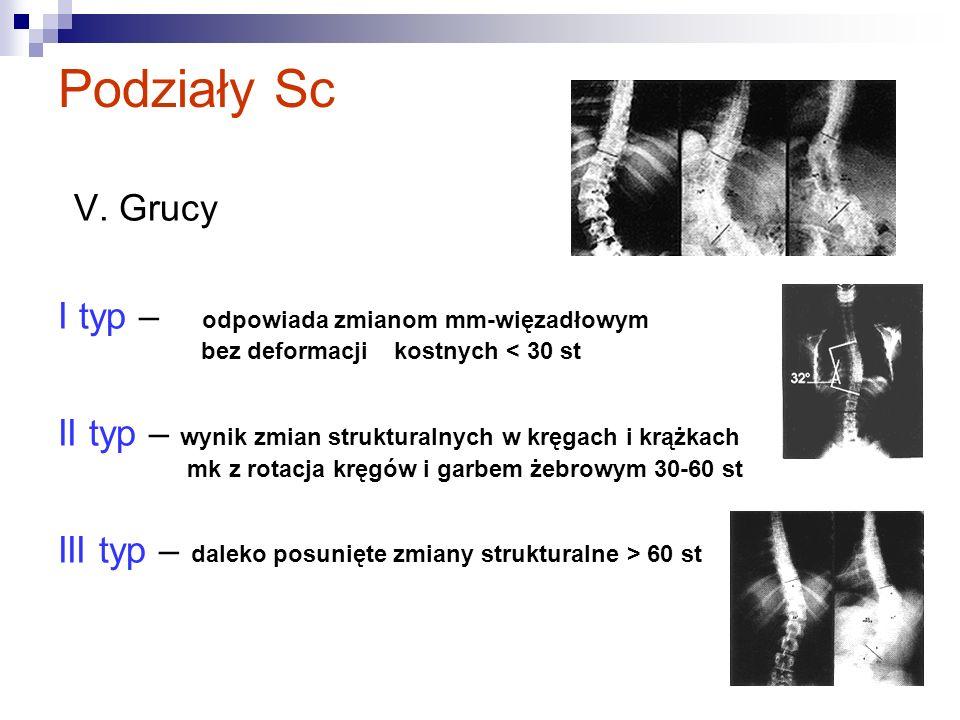 Podziały Sc V. Grucy I typ – odpowiada zmianom mm-więzadłowym bez deformacji kostnych < 30 st II typ – wynik zmian strukturalnych w kręgach i krążkach
