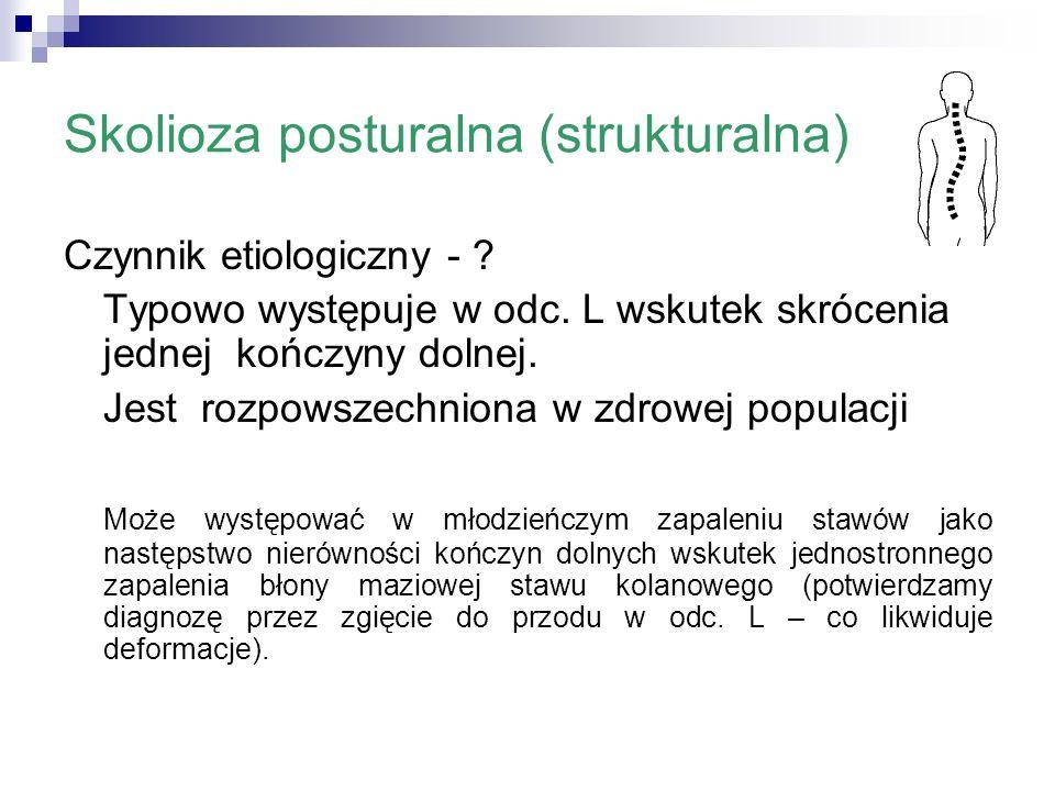 Skolioza posturalna (strukturalna) Czynnik etiologiczny - ? Typowo występuje w odc. L wskutek skrócenia jednej kończyny dolnej. Jest rozpowszechniona