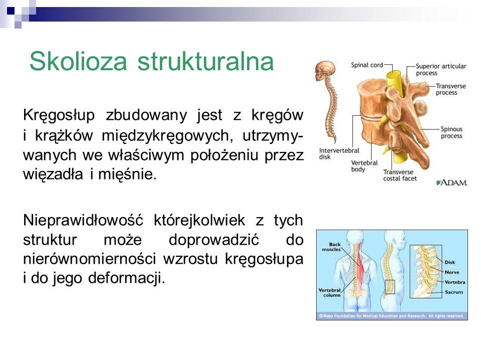 Skolioza strukturalna Kręgosłup zbudowany jest z kręgów i krążków międzykręgowych, utrzymy- wanych we właściwym położeniu przez więzadła i mięśnie. Ni