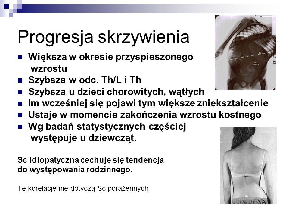 Progresja skrzywienia Większa w okresie przyspieszonego wzrostu Szybsza w odc. Th/L i Th Szybsza u dzieci chorowitych, wątłych Im wcześniej się pojawi