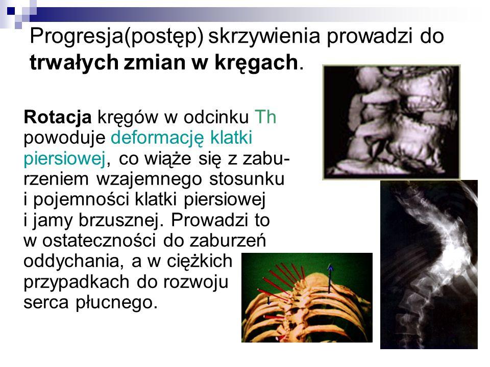 Progresja(postęp) skrzywienia prowadzi do trwałych zmian w kręgach. Rotacja kręgów w odcinku Th powoduje deformację klatki piersiowej, co wiąże się z