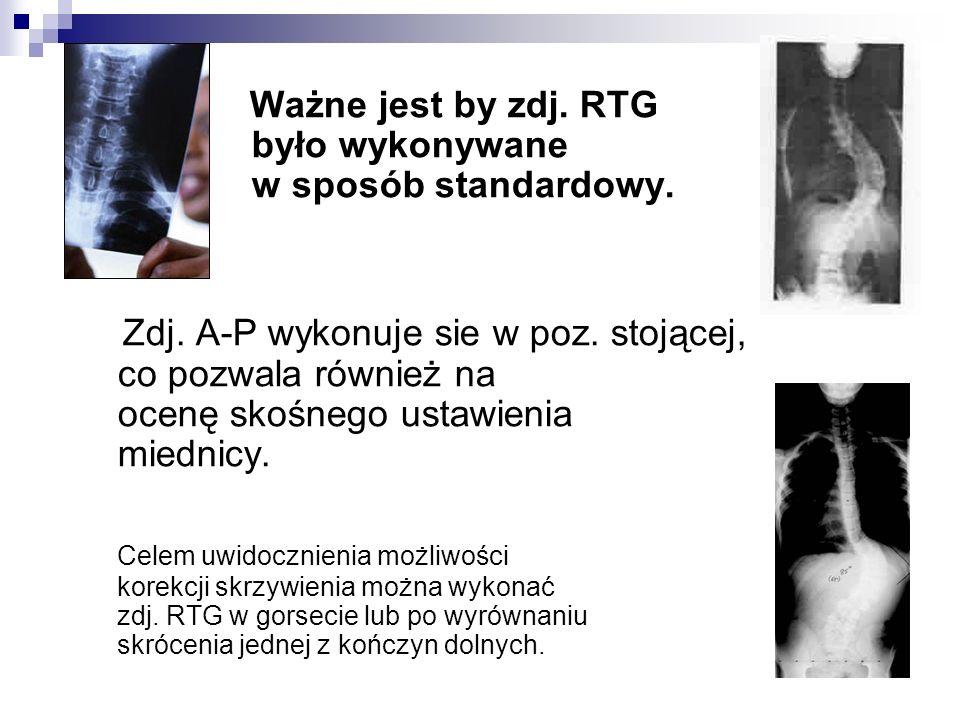 Ważne jest by zdj. RTG było wykonywane w sposób standardowy. Zdj. A-P wykonuje sie w poz. stojącej, co pozwala również na ocenę skośnego ustawienia mi