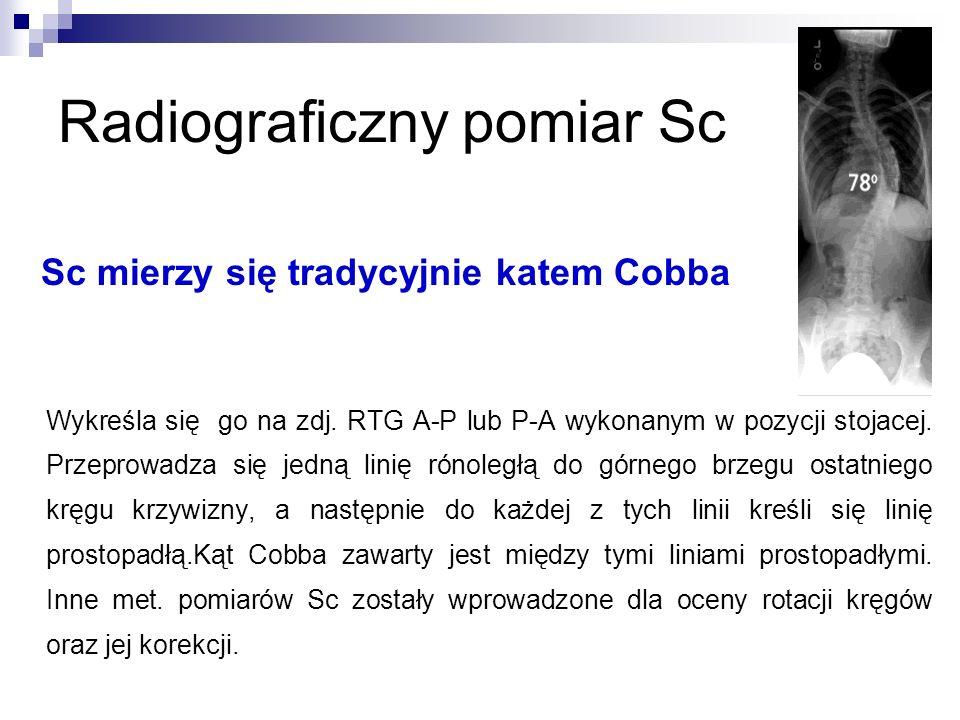 Radiograficzny pomiar Sc Sc mierzy się tradycyjnie katem Cobba Wykreśla się go na zdj. RTG A-P lub P-A wykonanym w pozycji stojacej. Przeprowadza się