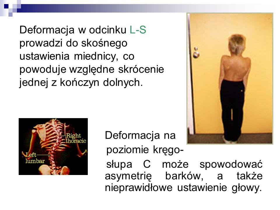 Deformacja w odcinku L-S prowadzi do skośnego ustawienia miednicy, co powoduje względne skrócenie jednej z kończyn dolnych. Deformacja na poziomie krę