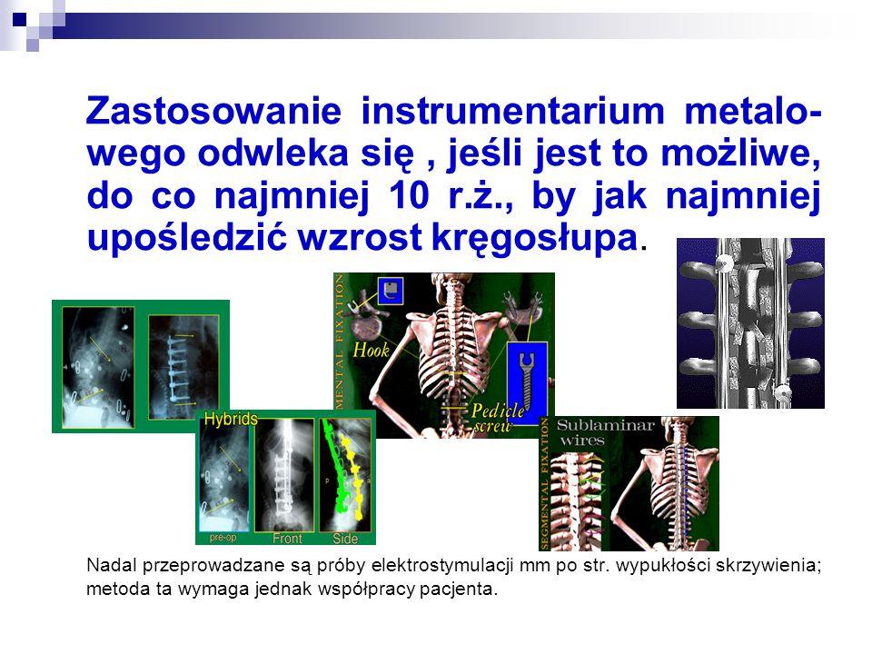 Zastosowanie instrumentarium metalo- wego odwleka się, jeśli jest to możliwe, do co najmniej 10 r.ż., by jak najmniej upośledzić wzrost kręgosłupa. Na