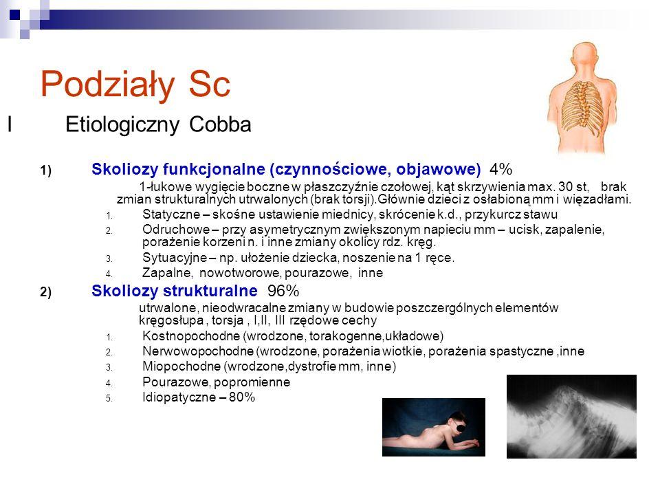 Sc idiopatyczna może pojawic się w każdym okresie wieku rozwojowego.