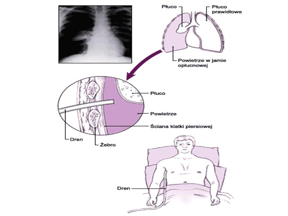 Pourazowa odma zamknięta: Jest to wtargnięcie powietrza do opłucnej przez pęknięcie płuca lub drzewa tchawiczo – oskrzelowego Objawy – brak szmeru odd