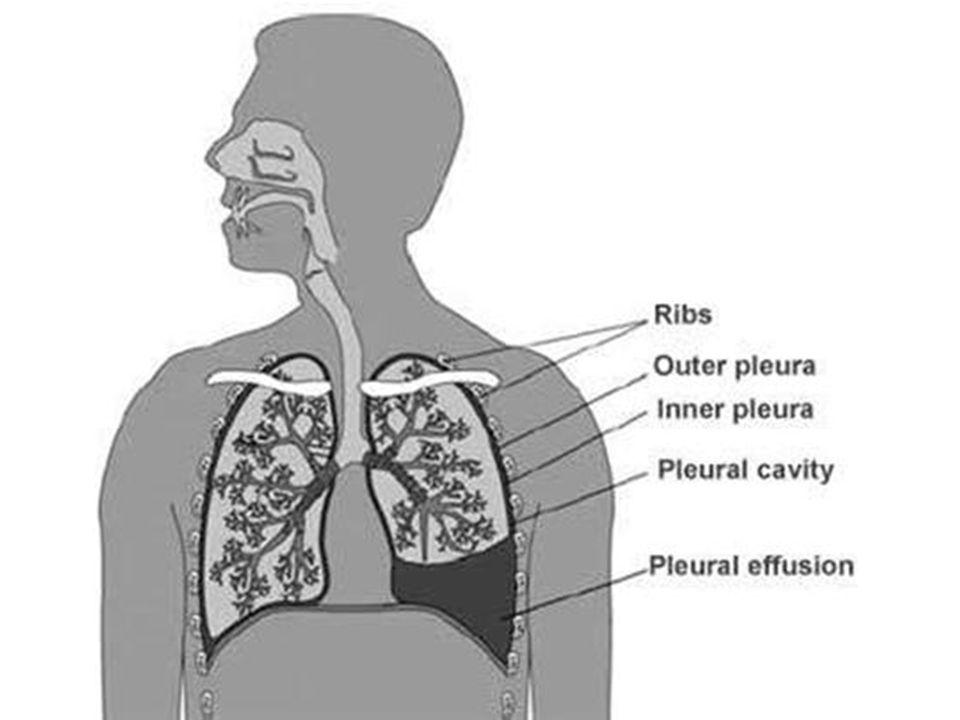 Pourazowy krwiak opłucnej Jest to obecność krwi w jamie opłucnej Powstaje w wyniku rozerwania tkanek miękkich oraz uszkodzenia naczyń międzyżebrowych