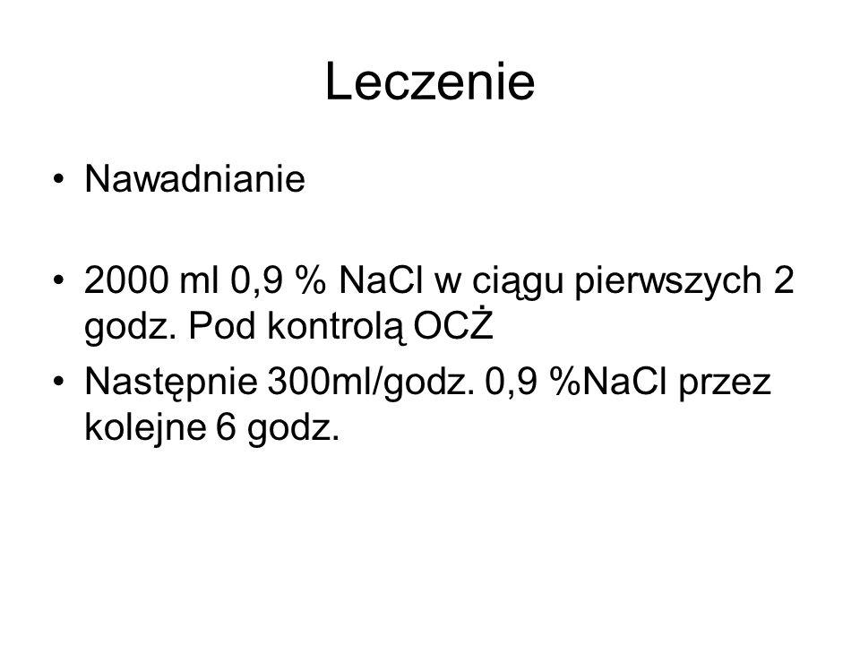 Leczenie Nawadnianie 2000 ml 0,9 % NaCl w ciągu pierwszych 2 godz. Pod kontrolą OCŻ Następnie 300ml/godz. 0,9 %NaCl przez kolejne 6 godz.