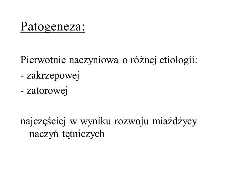 Patogeneza: Pierwotnie naczyniowa o różnej etiologii: - zakrzepowej - zatorowej najczęściej w wyniku rozwoju miażdżycy naczyń tętniczych
