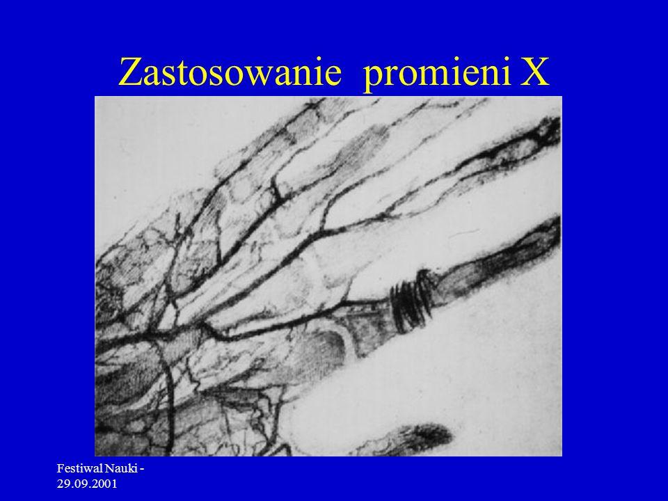 Festiwal Nauki - 29.09.2001 Promienie rentgenowskie 1895 rok