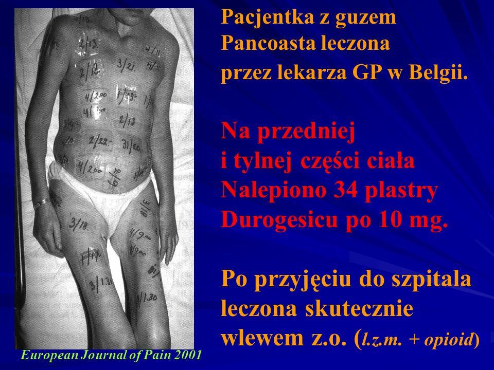 Pacjentka z guzem Pancoasta leczona przez lekarza GP w Belgii. Na przedniej i tylnej części ciała Nalepiono 34 plastry Durogesicu po 10 mg. Po przyjęc