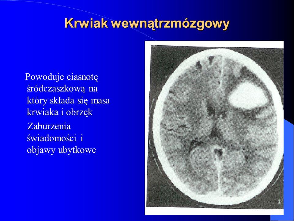 Krwiak wewnątrzmózgowy Powoduje ciasnotę śródczaszkową na który składa się masa krwiaka i obrzęk Zaburzenia świadomości i objawy ubytkowe