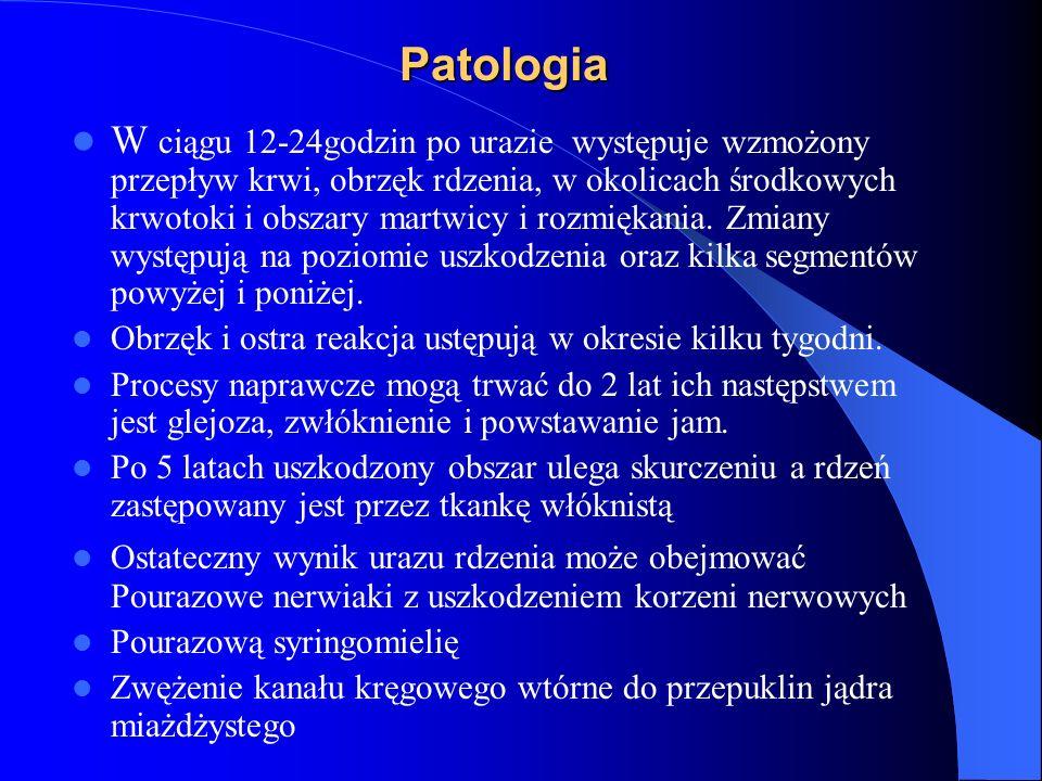 Patologia W ciągu 12-24godzin po urazie występuje wzmożony przepływ krwi, obrzęk rdzenia, w okolicach środkowych krwotoki i obszary martwicy i rozmięk