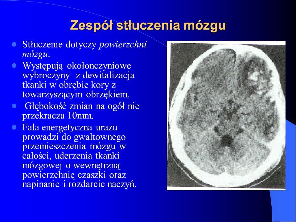 Zespół stłuczenia mózgu Stłuczenie dotyczy powierzchni mózgu. Występują okołonczyniowe wybroczyny z dewitalizacja tkanki w obrębie kory z towarzyszący