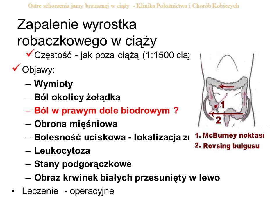 Zapalenie wyrostka robaczkowego w ciąży Częstość - jak poza ciążą (1:1500 ciąż) Objawy: –Wymioty –Ból okolicy żołądka –Ból w prawym dole biodrowym ? –