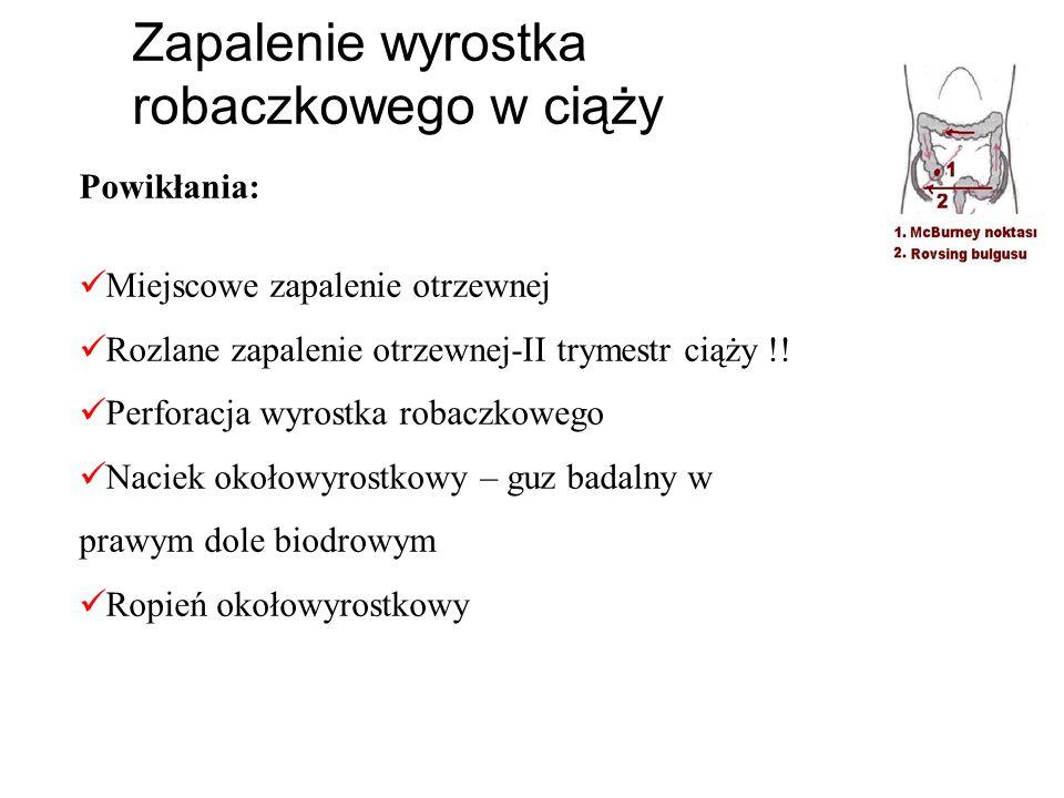 Zapalenie wyrostka robaczkowego w ciąży Powikłania: Miejscowe zapalenie otrzewnej Rozlane zapalenie otrzewnej-II trymestr ciąży !! Perforacja wyrostka