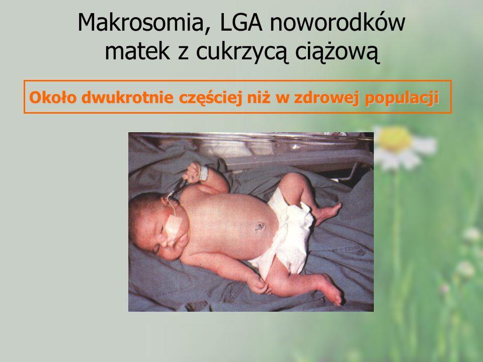 Makrosomia, LGA noworodków matek z cukrzycą ciążową Około dwukrotnie częściej niż w zdrowej populacji