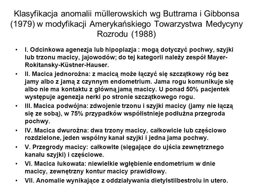 Klasyfikacja anomalii müllerowskich wg Buttrama i Gibbonsa (1979) w modyfikacji Amerykańskiego Towarzystwa Medycyny Rozrodu (1988) I. Odcinkowa agenez