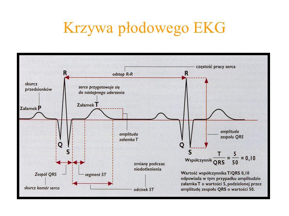 Krzywa płodowego EKG