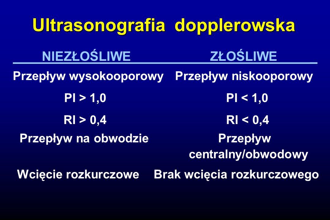 Ultrasonografia dopplerowska NIEZŁOŚLIWE ZŁOŚLIWE _ Przepływ wysokooporowy Przepływ niskooporowy PI > 1,0 PI < 1,0 RI > 0,4 RI < 0,4 Przepływ na obwodzie Przepływ centralny/obwodowy Wcięcie rozkurczowe Brak wcięcia rozkurczowego