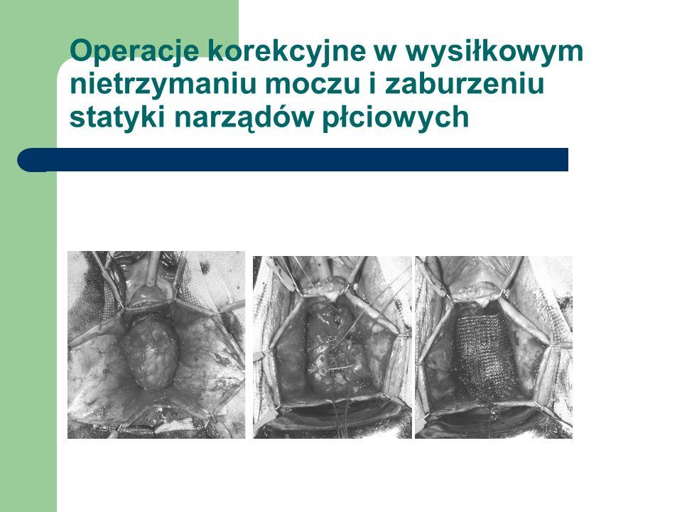 Operacje korekcyjne w wysiłkowym nietrzymaniu moczu i zaburzeniu statyki narządów płciowych