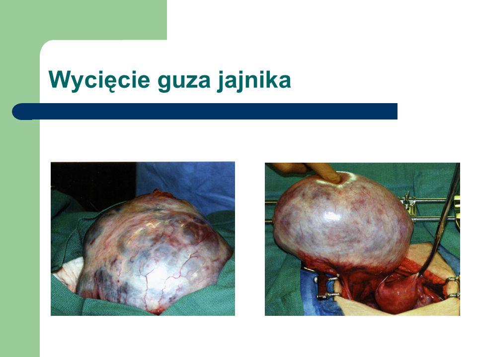 Wycięcie guza jajnika