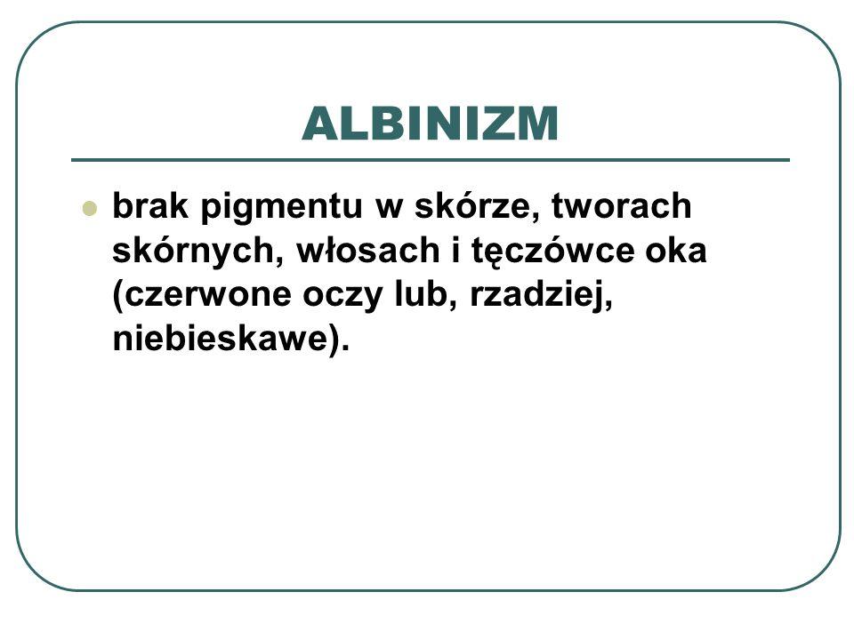 OBJAWY ALBINIZU bardzo jasna skóra, białe włosy, rzęsy i brwi.