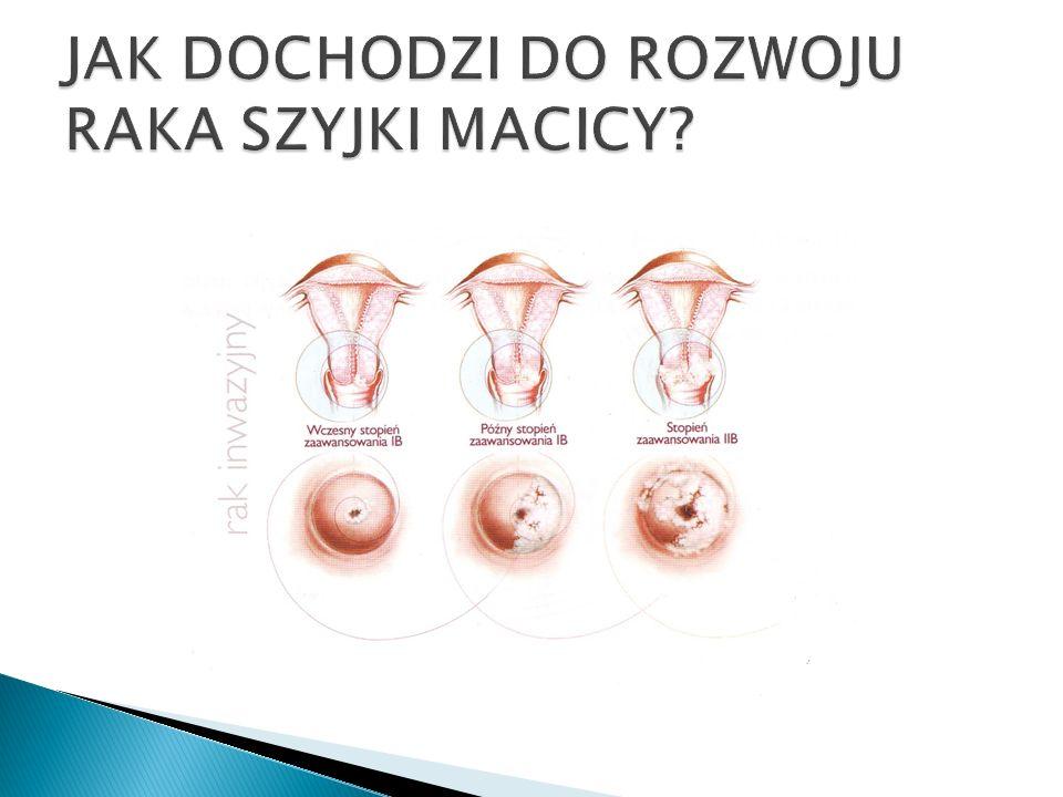 Regularne badanie jest najbardziej skutecznym sposobem wykrywania nieprawidłowych zmian komórkowych szyjki macicy, które mogą stanowić wczesne stadium raka szyjki macicy.