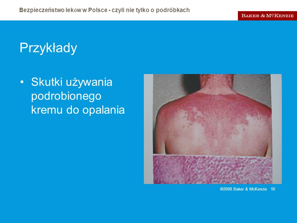 Bezpieczeństwo lek ó w w Polsce - czyli nie tylko o podróbkach ©2008 Baker & McKenzie 10 Przykłady Skutki używania podrobionego kremu do opalania