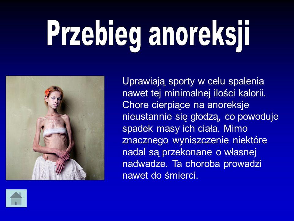 Chorujące na anoreksję osoby są w różnym wieku i z różnych środowisk, ale najczęściej dotyka ona dziewczęta między 12 a 21 rokiem życia.