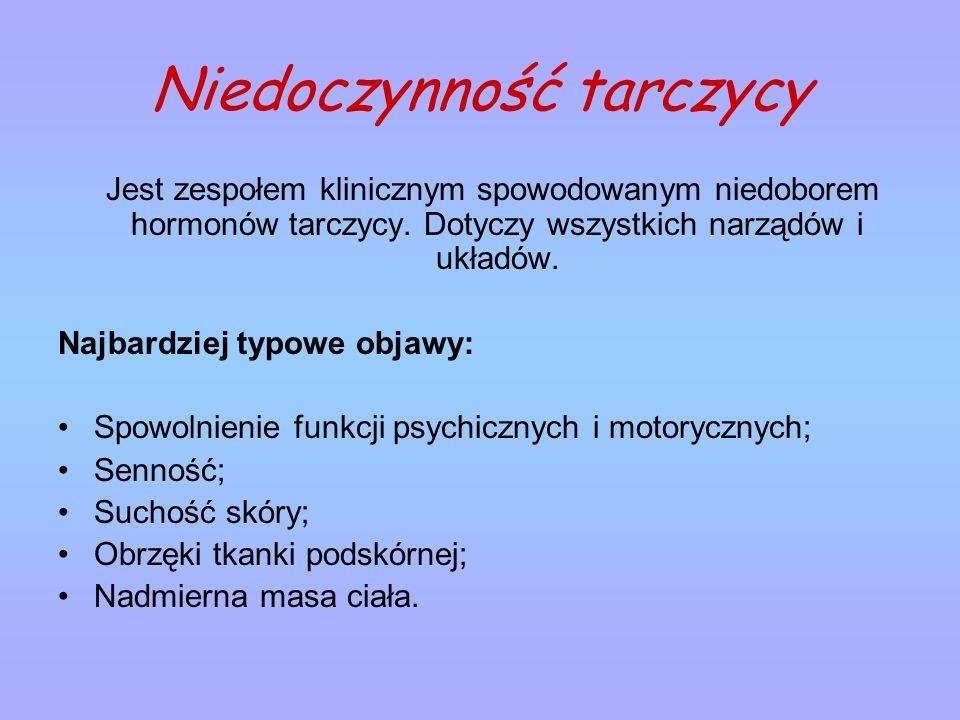 Niedoczynność tarczycy Jest zespołem klinicznym spowodowanym niedoborem hormonów tarczycy. Dotyczy wszystkich narządów i układów. Najbardziej typowe o