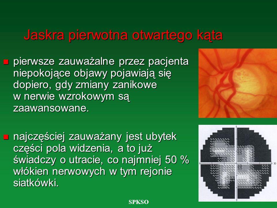 SPKSO Jaskra pierwotna otwartego kąta n pierwsze zauważalne przez pacjenta niepokojące objawy pojawiają się dopiero, gdy zmiany zanikowe w nerwie wzro