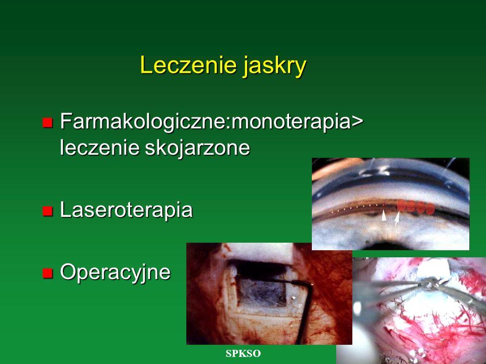 SPKSO Leczenie jaskry n Farmakologiczne:monoterapia> leczenie skojarzone n Laseroterapia Operacyjne Operacyjne