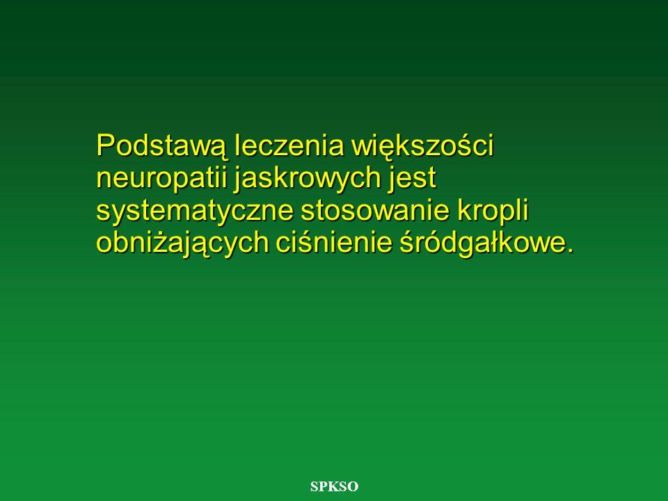 SPKSO Podstawą leczenia większości neuropatii jaskrowych jest systematyczne stosowanie kropli obniżających ciśnienie śródgałkowe.