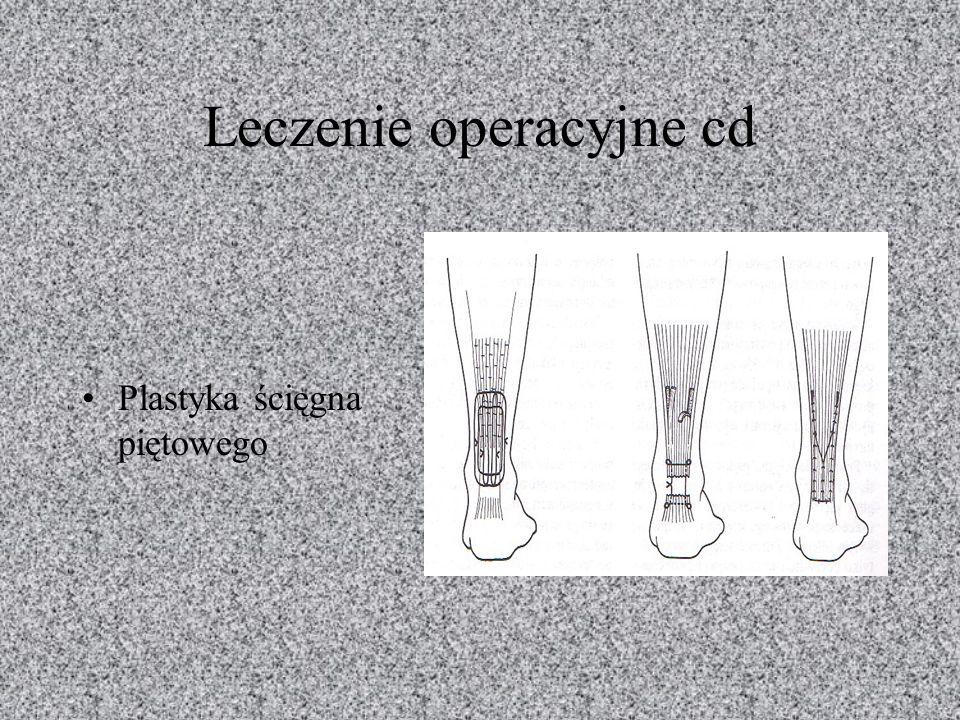 Leczenie operacyjne cd Plastyka ścięgna piętowego